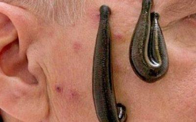 Facial Leech Therapy
